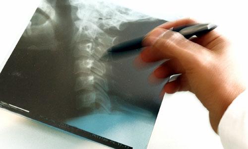 С чего надлежит начать лечение заболеваний позвоночника и какого рода плюсами наделена мануальная терапия?